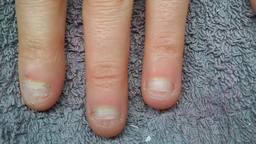 Nagelbijter Beautiful Nails by Linde Leuven